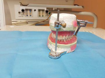 Aparaty ortodontyczne Łódź